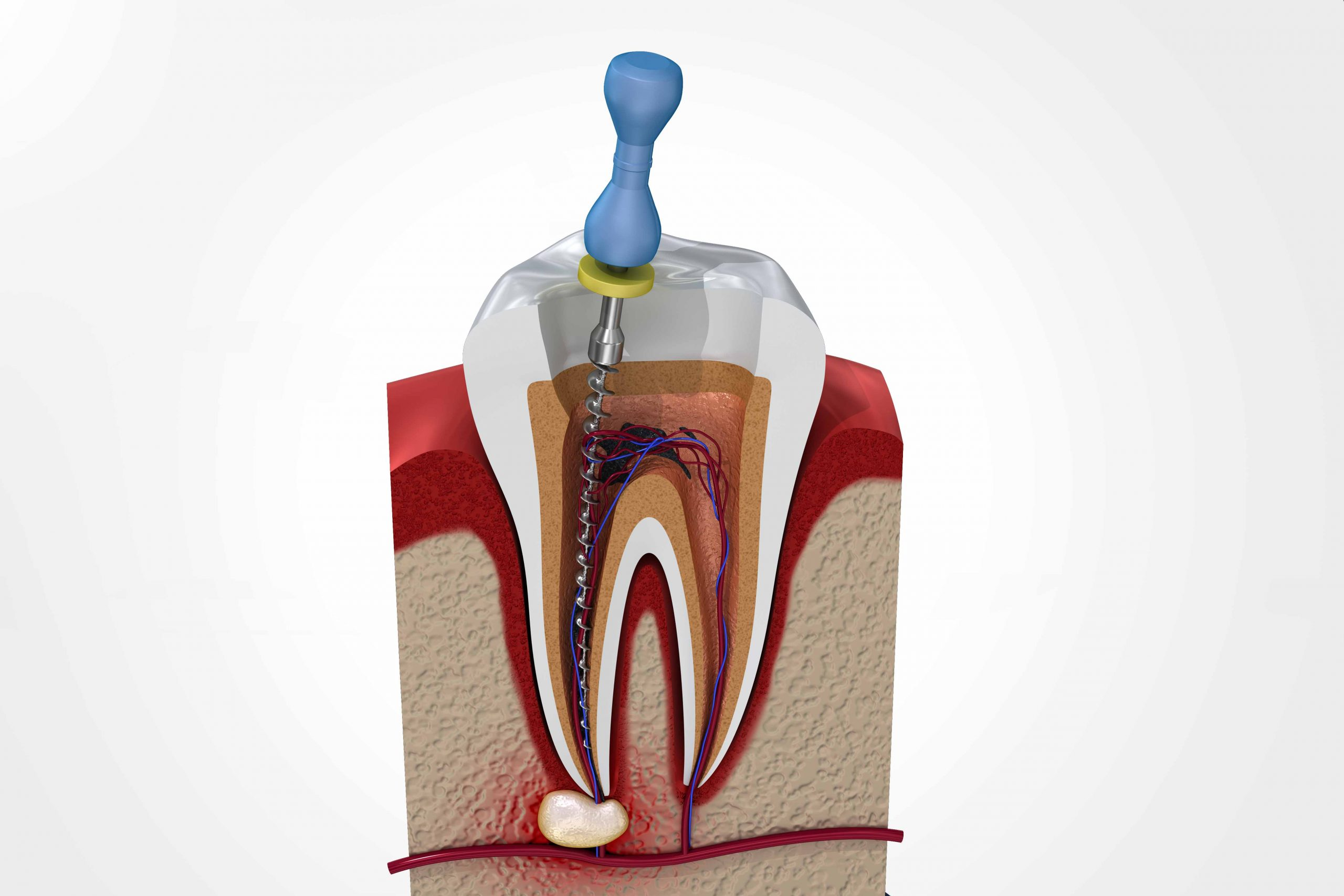 affordable root canal treatment in dwarka